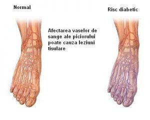Piciorul_diabetic_tulburari_circulatorii_ro