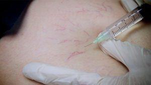 Micro-scleroterapie