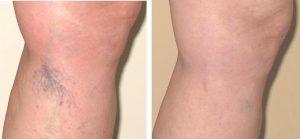 varicoză în picioarele stângi rețeta de la varicoză